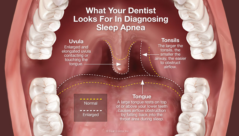diagnosing-sleep-apnea